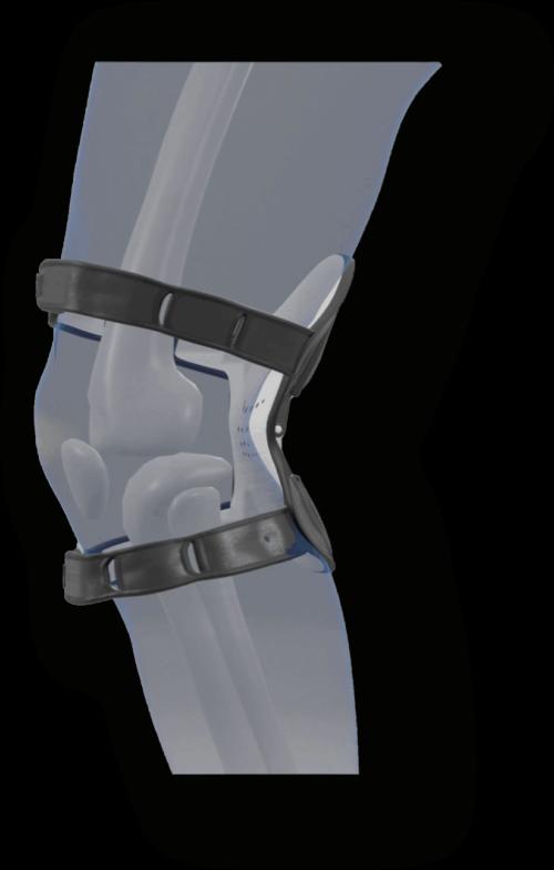 Bio Knee ginocchiera del futuro: dove si acquista? Consigli e vantaggi, opinioni e recensioni, prezzo